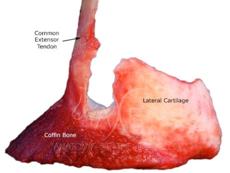 Only the common extensor tendon and lateral cartilage remains on the coffin bone