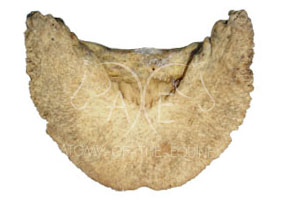 Distal (bottom) view of the coffin bone